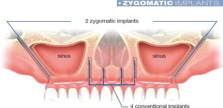 Portada implants  zigomatic
