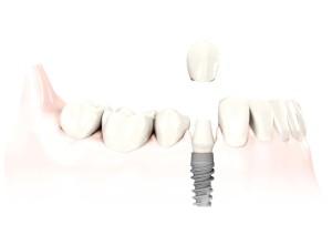 implant-unitari